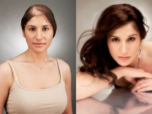 chemo wigs for cancer patients thevenusface.com